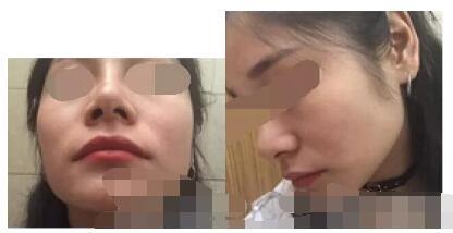 上海华美整形李志海磨骨案例 术后90天带给我新的人生