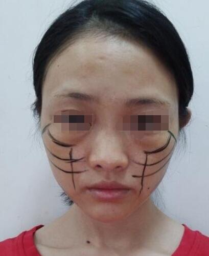 北京爱斯克整形孙玮骏医生线雕提升案例 术后真的年轻好几岁了