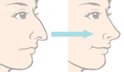 鷹鉤鼻矯正手術是很成熟的