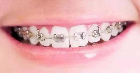 牙齿矫正会出现痛和松动的情况吗?