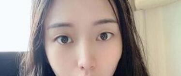 北京冰洁克莱美舍整形张冰洁医生双眼皮案例 分享术后70天的变化