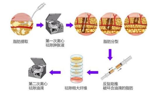 2020年郑州做自体脂肪填充比较好的医院和医院攻略 仅供参考
