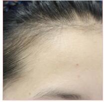 南昌时光整形做发际线种植案例 术后30天可以扎丸子头美美过年了