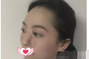 广东人民医院匡斌做假体隆鼻案例 术后鼻子恢复改变整体美