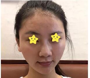 广州军美整形冀晨阳做隆鼻案例 术后鼻子变得美美哒