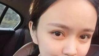 郑州美美整形微创双眼皮案例 术后2个月像是一个萌妹子啦