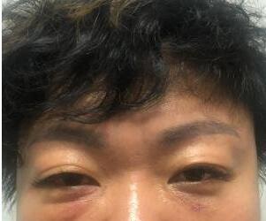 广州人民医院整形去眼袋案例 看着镜子中变年轻的自己真好