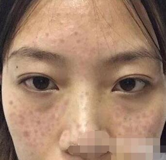 广东省人民医院整形去雀斑案例 现在脸上没有瑕疵了哦