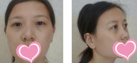 长沙星雅整形隆鼻案例 术后3个月的效果很自然