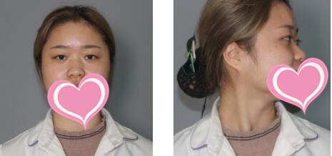 长沙梵童整形彭见生医生隆鼻案例 分享术后9天的变化心得