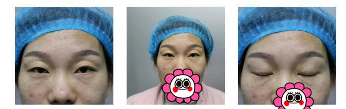 荊州中愛整形眼部綜合案例 恢復的越來越好