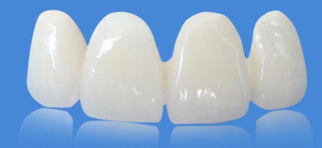 全瓷牙不会伤害牙龈的原因