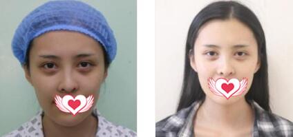 濟南美蓮整形做耳軟骨復合隆鼻案例 術后1個月鼻子恢復得很快