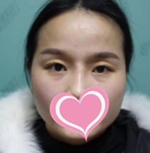 黃石中愛整形雙眼皮案例 術后3個月效果真的很不錯