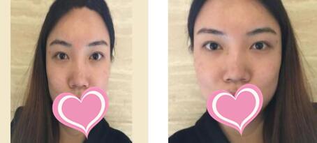 青島華韓整形隆鼻案例 30天后真的比以前好多了