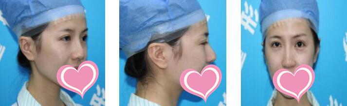 濟南隅美整形隆鼻修復案例 術后2個月的變化圖分享+心得