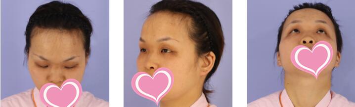 武漢藝星整形隆鼻案例 術后當天的心得分享啦