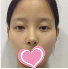 济南美辰整形取颊脂垫瘦脸案例 术后1个月的蜕变图分享