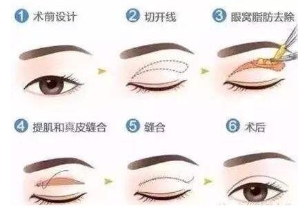 肿泡眼要做双眼皮手术的话,那适合哪种术式