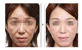 DPL精準嫩膚緊致提升儀器