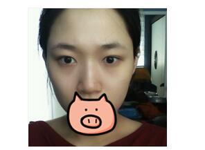 洛陽維多利亞整形鼻綜合案例 我也有美鼻了好開心