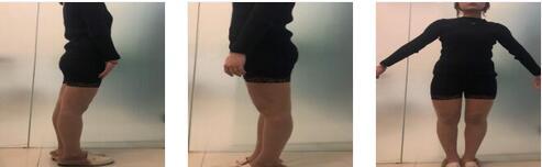 昆明夢想整形李成龍醫生大腿吸脂案例 這次吸脂完全沒有凹凸不平