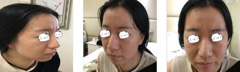 西安雁塔華旗唯美整形張沙沙醫生自體肋軟骨隆鼻案例 變化很明顯