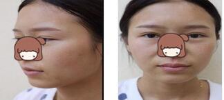 西安雁塔华旗唯美整形玻尿双隆下巴案例 脸部很立体了,开心