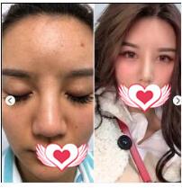 西安葉子整形做硅膠隆鼻案例 術后2鼻子越來越漂亮了