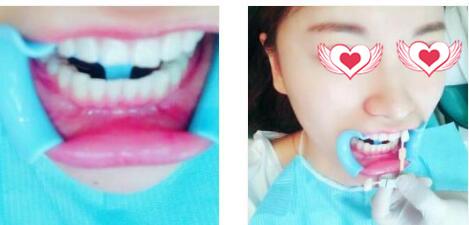 西安高一生整形做牙齒美白案例 術后2個月笑起來很自信