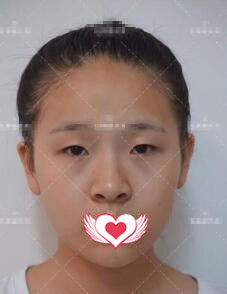 長沙愛思特整形張姣姣做雙眼皮案例 術后變得自然漂亮喲