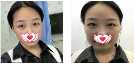 樂山達芬奇整形做埋線提升案例 術后2個月臉型恢復得很精致