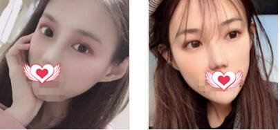 秦皇島釹娃整形隆鼻案例 術后九個月鼻子恢復得很秀氣