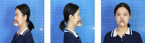 新疆華美整形硅膠隆鼻案例 術后一個月,拍照沒有絲毫的壓力了