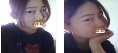 北京長虹整形張守玲醫生切開雙眼皮+隆鼻案例 恢復得很自然