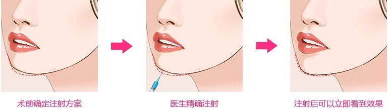 玻尿酸注射隆下巴的好处及针对个人选择详细介绍