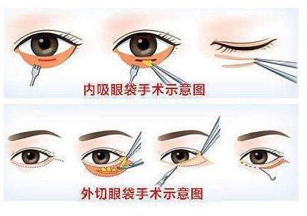 祛眼袋手术方式选择内切还是外切