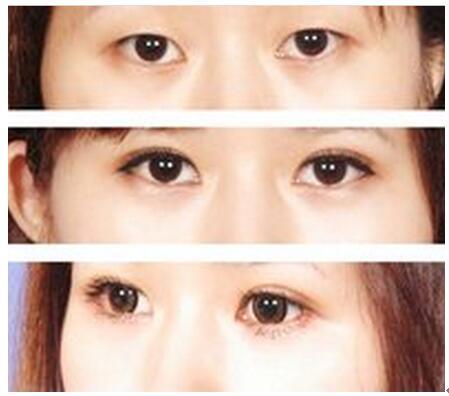 选择哪种双眼皮整形方式,适合什么样的手术方法?