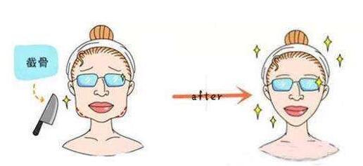 下颌角磨骨一定要做到这些详细且全面的术后注意事项
