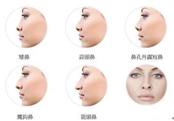 想要好看的鼻子是要跟脸型相协调才能显得更好看