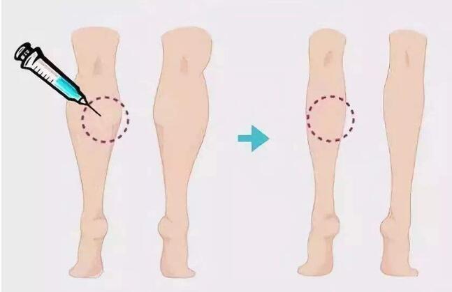 抽脂和瘦腿针是改变粗腿的有效方法