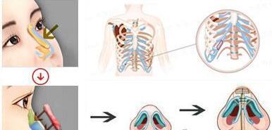 這樣子才能知道肋軟骨隆鼻與耳軟骨隆鼻哪個更適合你