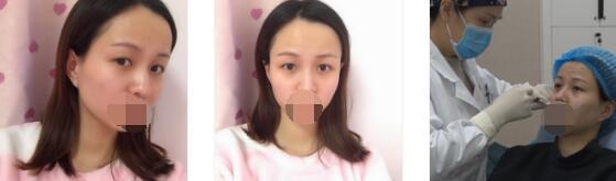 武汉美天整形玻尿酸注射丰脸案例