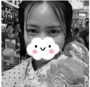 晋城凤凰整形肉毒素瘦脸案例 术后两个月心得分享