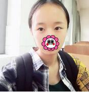 深圳恩吉娜整形半永久眉术案例 很自然了,摆脱蜡笔小新形象