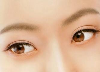 開眼角的價格多少?開眼角術后護理
