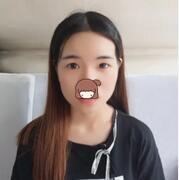 广州曙光整形双眼皮案例 术后两个月对比图+心得分享