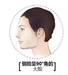 这几种骨骼性大脸吸脂也是拯救不了的