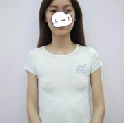 广州艺美整形假体隆胸案例 术后两个月来分享我的心得了