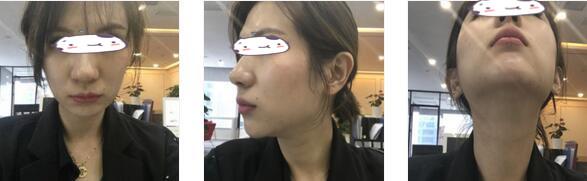 无锡坤如玛丽整形崔培培医生埋线提升案例 目前皮肤很紧致